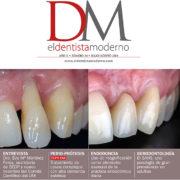 Articulo SAHS - Clinica del canto - Dentista Moderno