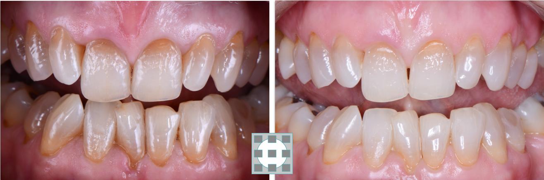 Blanqueamiento dental en Las Rozas y Torrelodones - Clinica del Canto