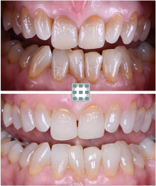 Blanqueamineto dental