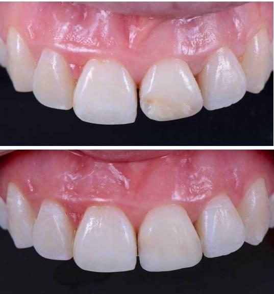Cambio de composites envejecidos - clinica del canto