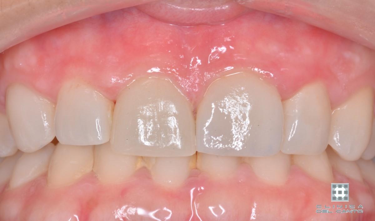 Carilla - Protesis dentales