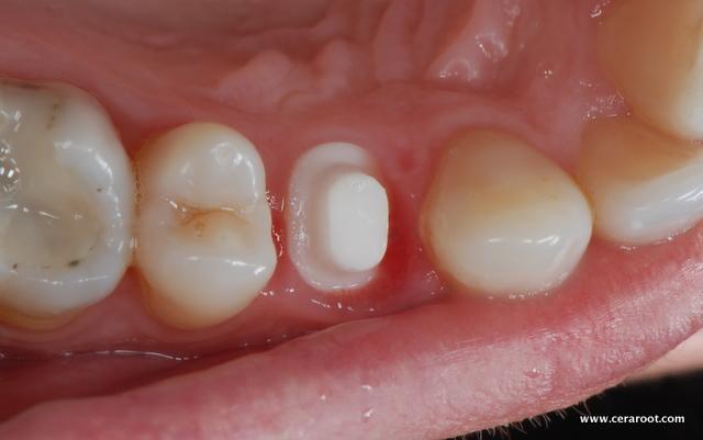 ortodoncia sin metales
