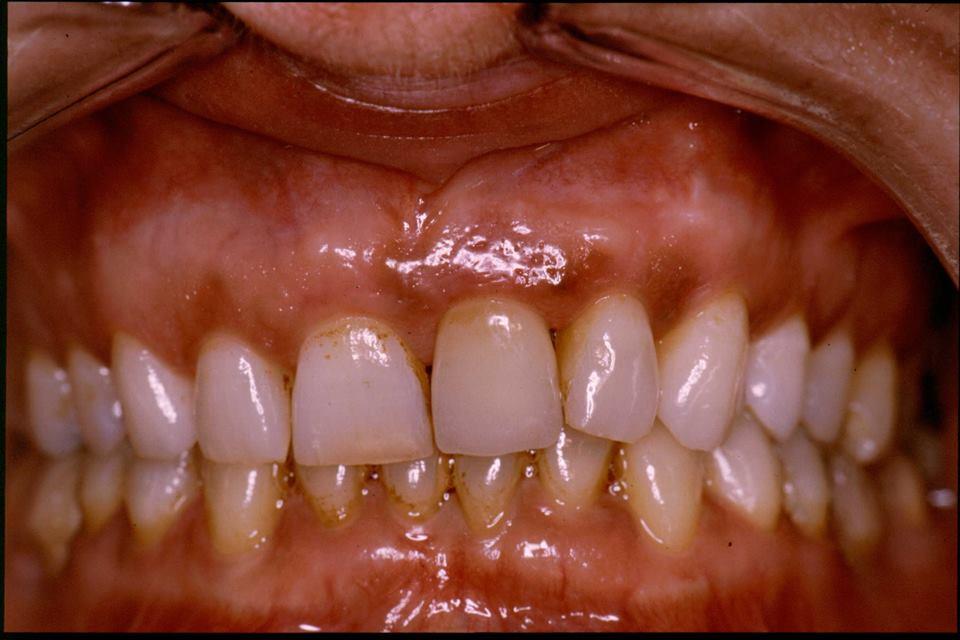 Enfermedad periodontal Clinica dental las rozas 3
