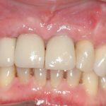 Enfermedad periodontal Clinica dental las rozas 6