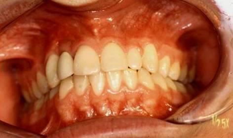 Implantes dentales formacion materiales de calidad 3