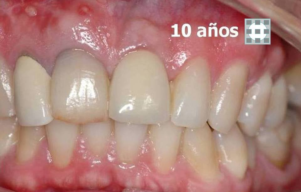 Implantes dentales formacion materiales de calidad 4