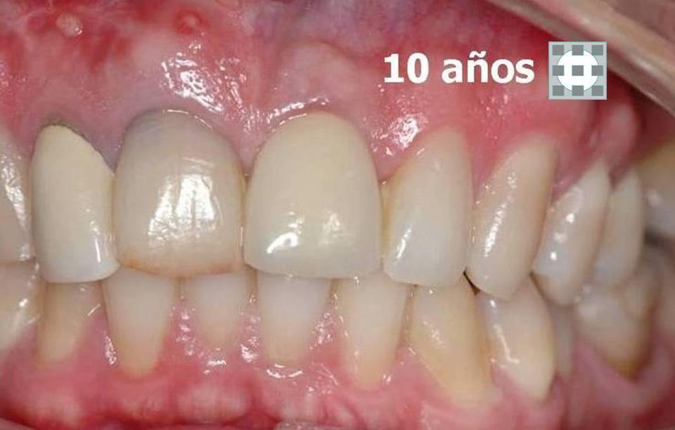 Implantes dentales formacion materiales de calidad 4