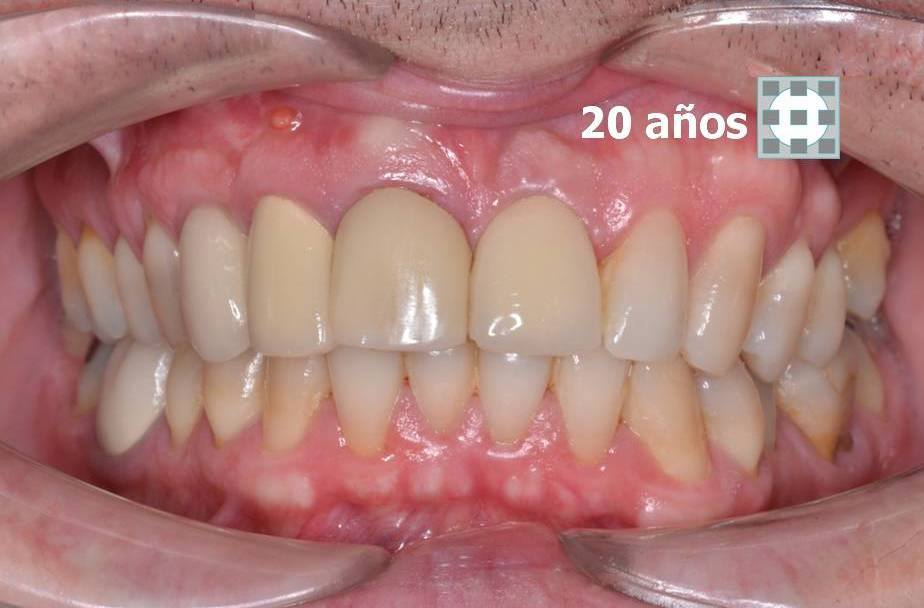 Implantes dentales formacion materiales de calidad 5
