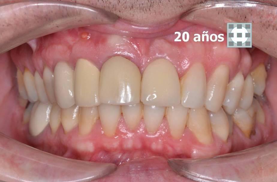 Implantes dentales formacion materiales de calidad 5