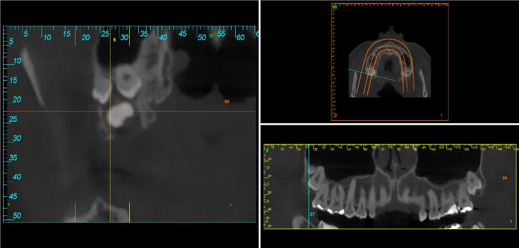 Correcto-diagnostico-de-retenciones-dentarias-Captura-Bti-Scan-sup