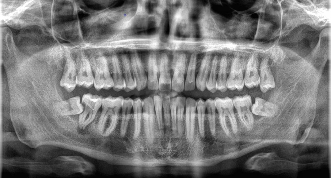 Cuando es necesaria la xtracción de muelas del juicio - Clinica del Canto