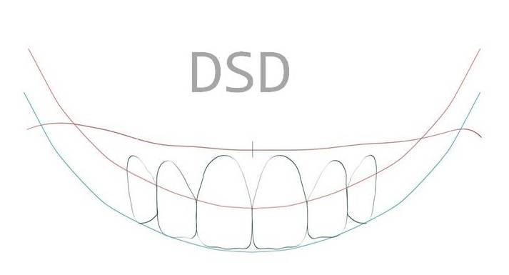 DSD en Las Roas y Torrelodones - Clinica del Canto