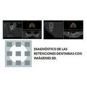Diagnostico-de-retenciones-dentarias-con-imagenes-3d-clincia-del-canto