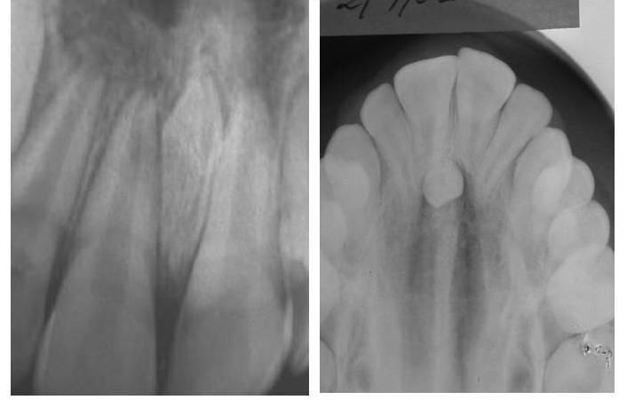 diente-incluido-supernumerario-mesiodens