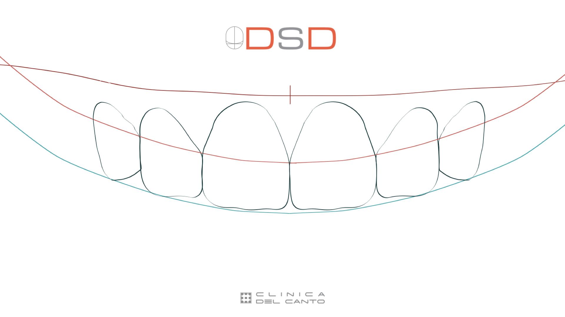 Diseño digital de Sonrisa - Clínica del Canto