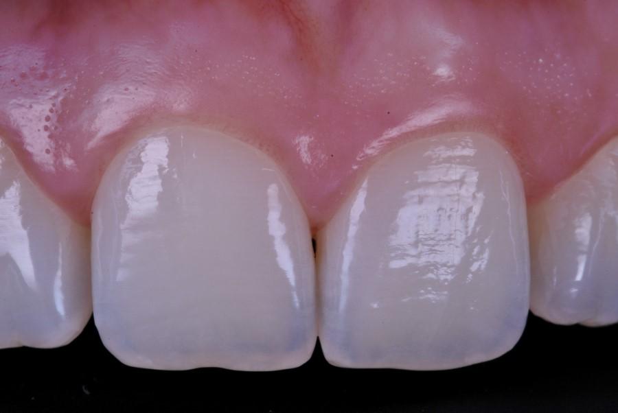 Estetica Dental Clínica del Canto