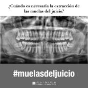 Extracción de muelas del juicio - Clinica del Canto