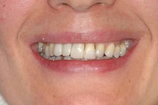 Fracaso de implantes dentales despues