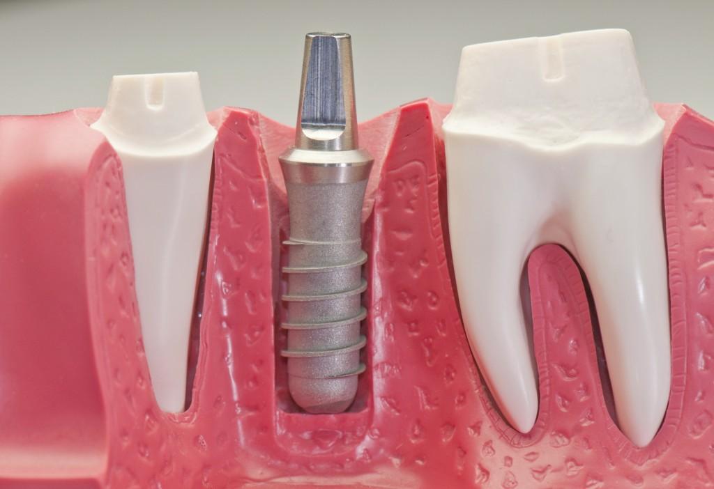 Implante Dental Cuidados