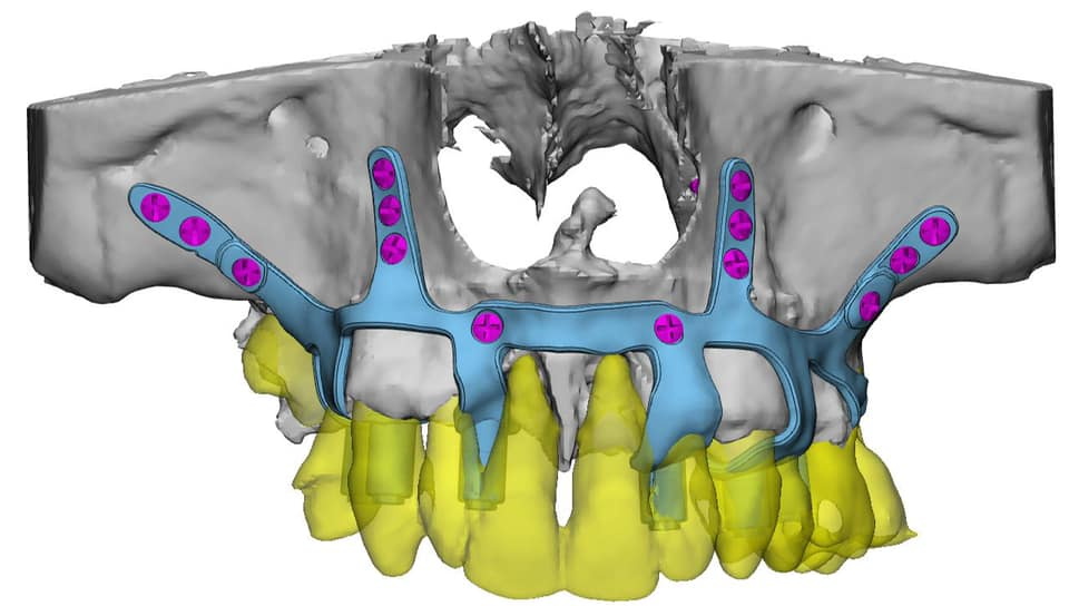 Implantes dentales con poco hueso - Clinica del Canto