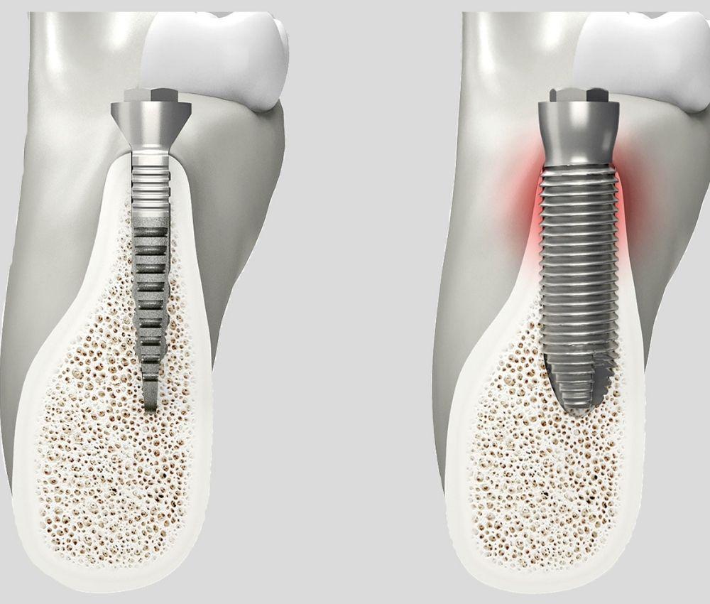 Implantes dentales modificados