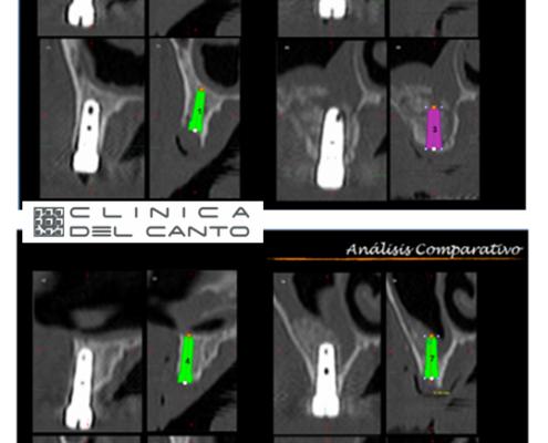 Implantes-dentales-sin-cirugia-caso-clinico-1-1-clinica-del-canto