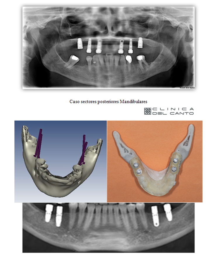 Implantes-dentales-sin-cirugia-caso-clinico-2-4-clinica-del-canto