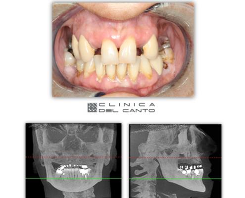 Implantes-dentales-sin-cirugia-caso-clinico-2-clinica-del-canto