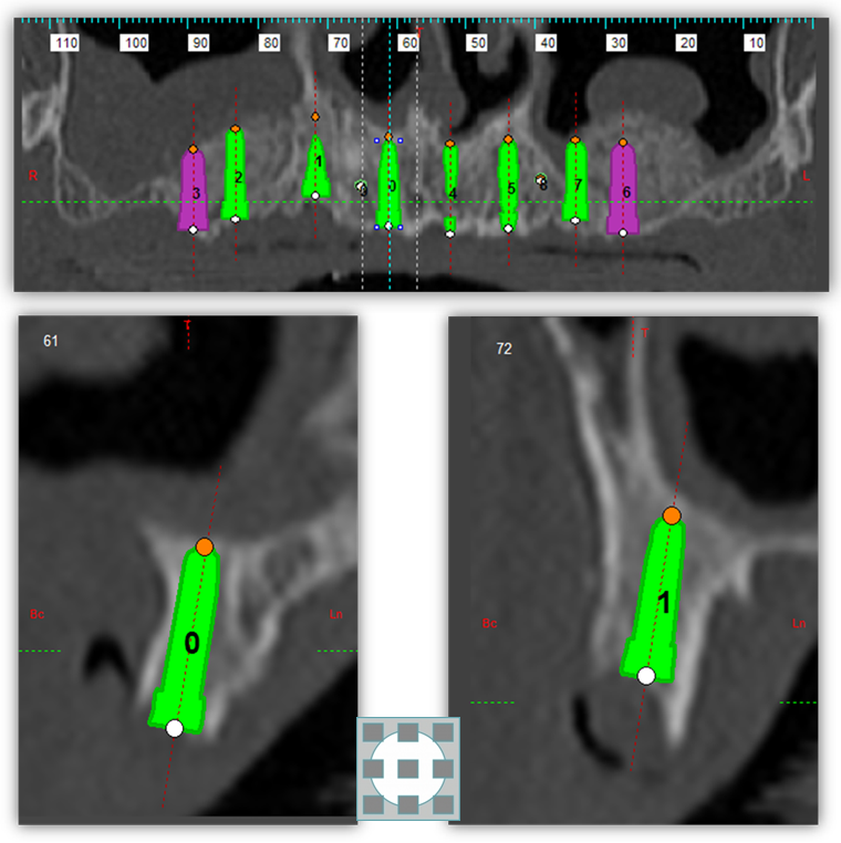 Implantes-dentales-sin-cirugia-fase-de-planificacion-clinica-del-canto