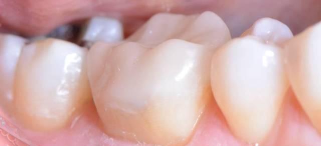 Incrustaciones dentales - Clinica del Canto