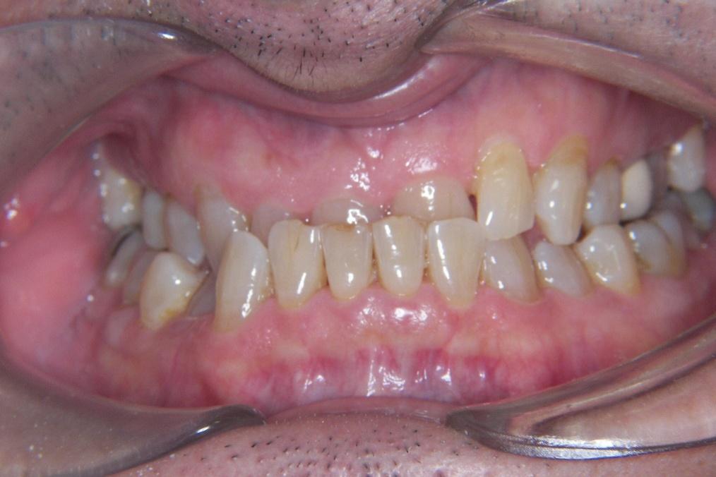 Ortodoncia en adultos antes