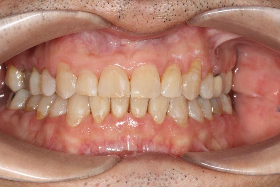 Ortodoncia en adultos despues