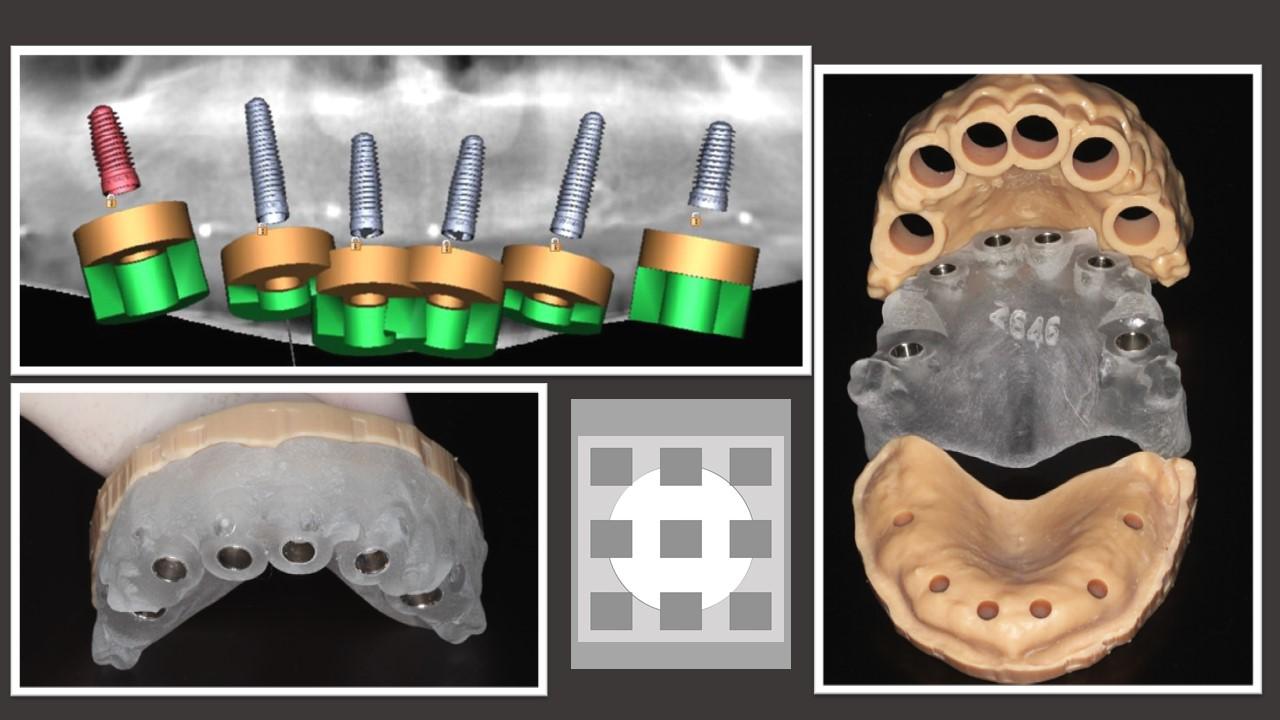 Prótesis dentales - Clínica del Canto