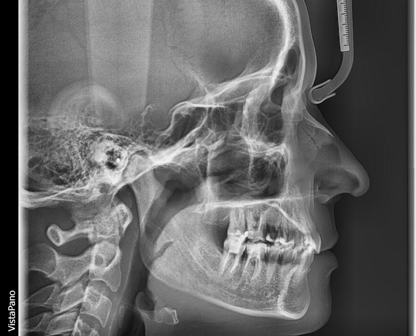 Radiologia-dental-lateral-Clínica-del-Canto