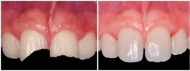 Restauracion con composite - fracturas - traumatismo dental - clinica del canto