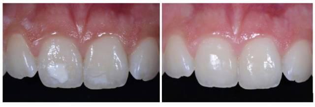 Restauracion con composite por manchas blancas - clinica del canto