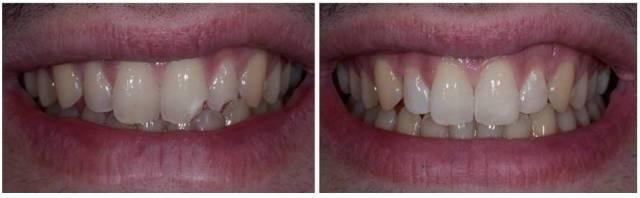 Restauracion dental con composite por fractura - traumatismo- clinica del canto