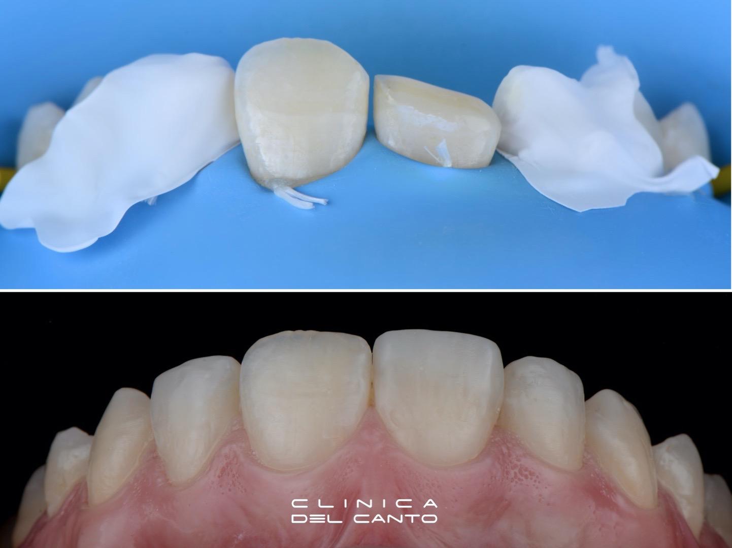 Restauraciones dentales - Clínica del Canto
