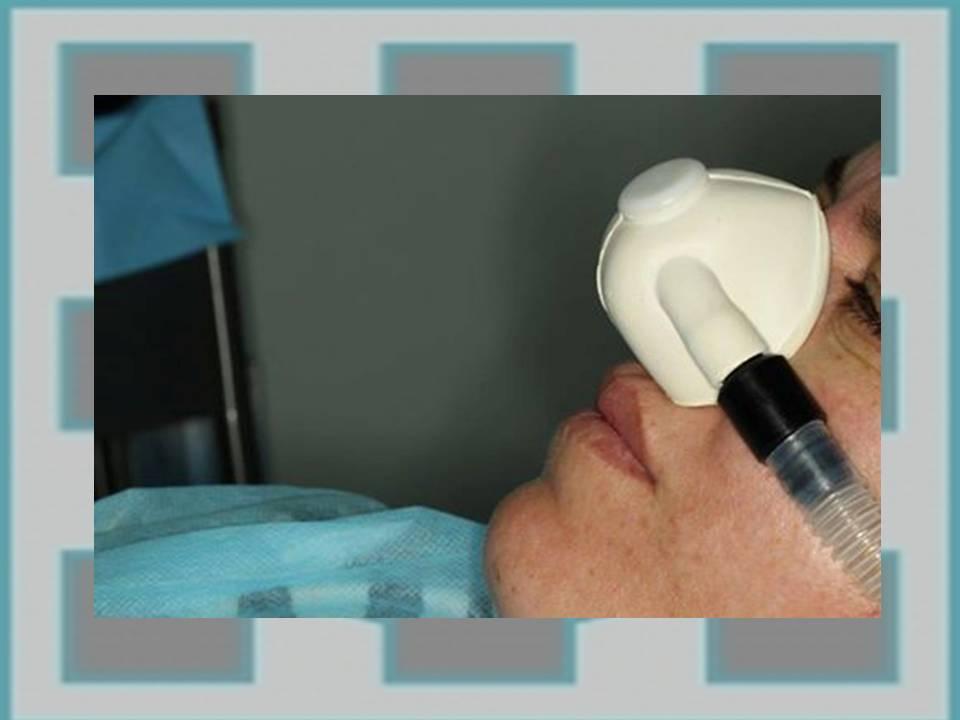 sedacion-consciente-clinica-del-canto-las-rozas-torrelodones