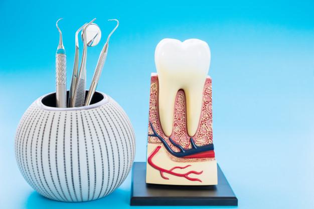 Tratamiento de periodoncia - Clinica del Canto