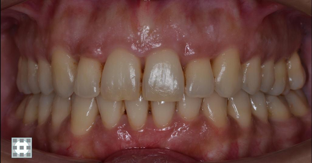 Tratamiento-gingivitis-clinica-del-Canto-Las-Rozas-Torrelodones