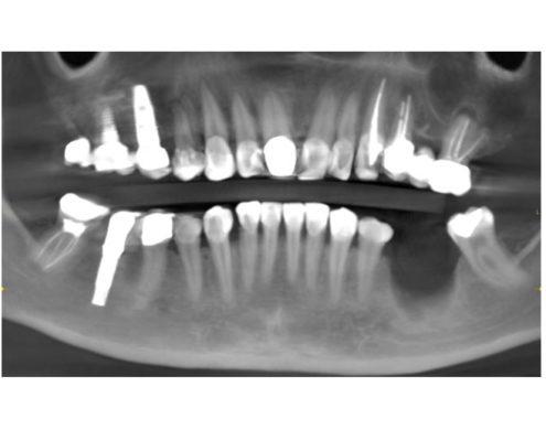 caso-4-1-regeneracion-osea-clinica-del-canto