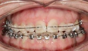 Brackets estéticos