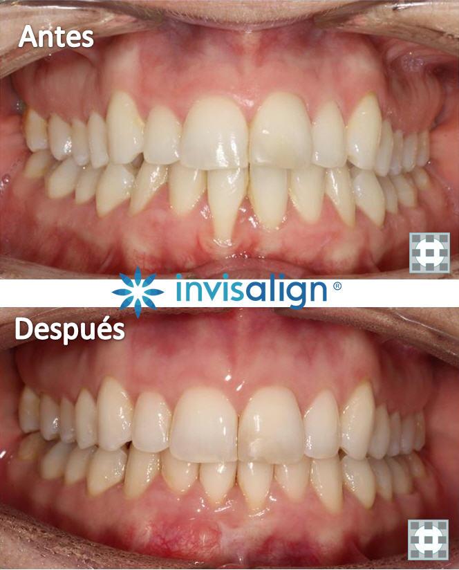 Ortodoncia invisible invisalign antes y despues Clinica del Canto