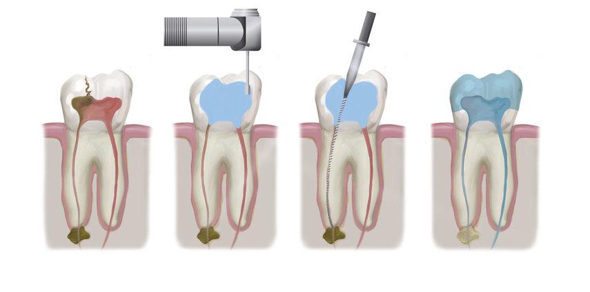 endodoncia-las-rozas-torrelodones-clinica-del-canto