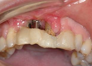 fracaso-implantes-dentales-antes