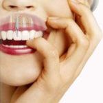 implantes-dentales-decalogo