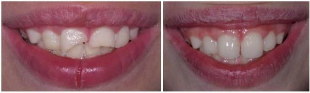 restauracion dentaria por fractura - traumatismo - clinica del canto